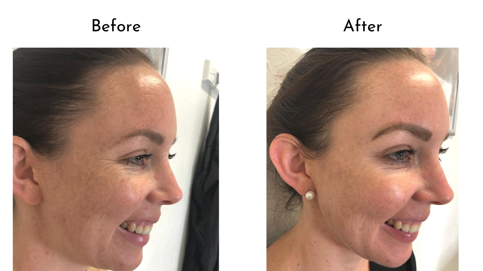 Botox before and after comparison crows feet
