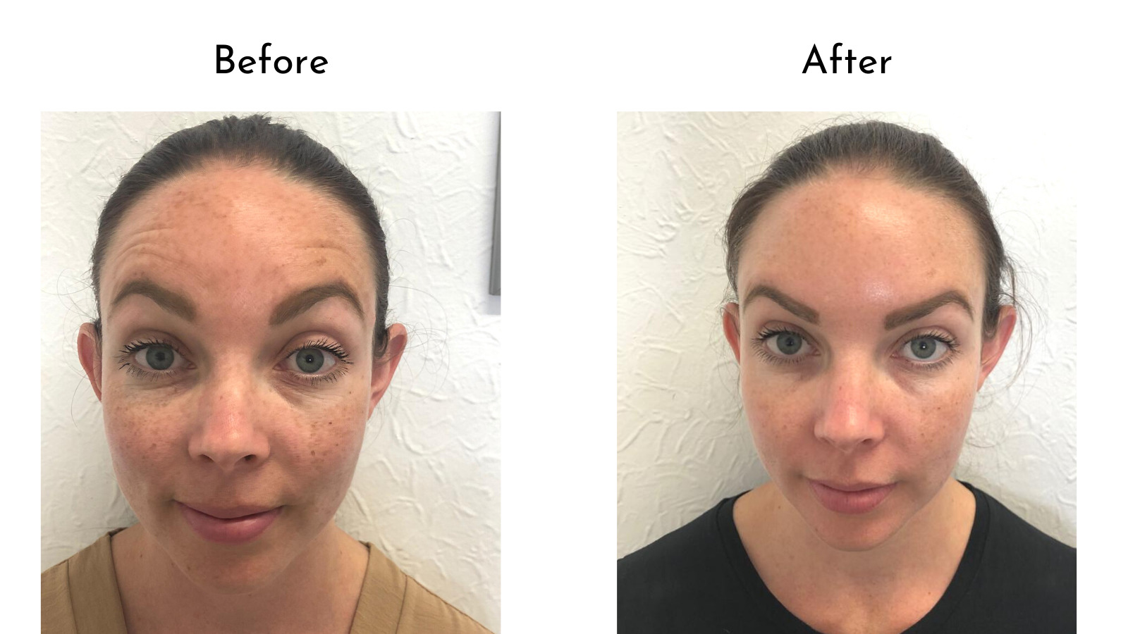 forehead Botox before and after photo comparison